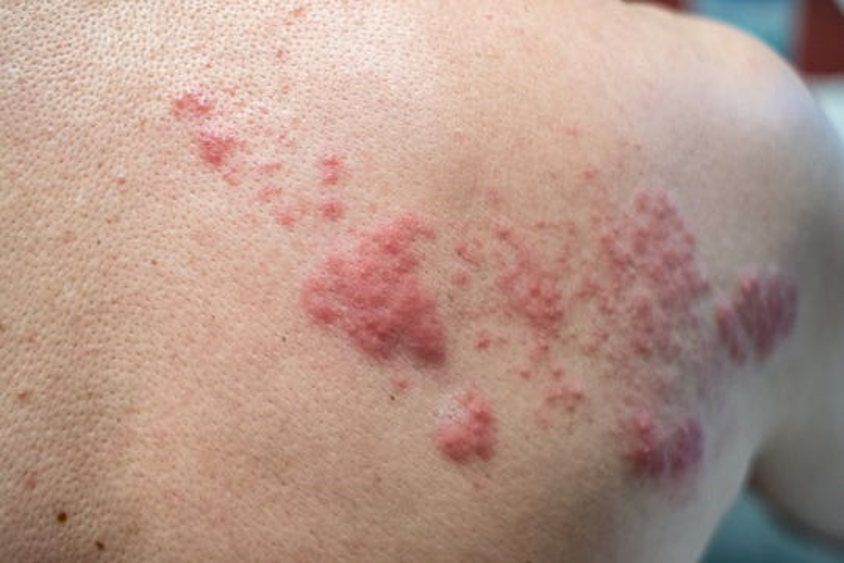 Chiropractic Can Help With Shingles